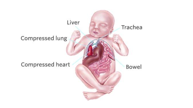 Bebeklerde Karaciğer Büyümesi