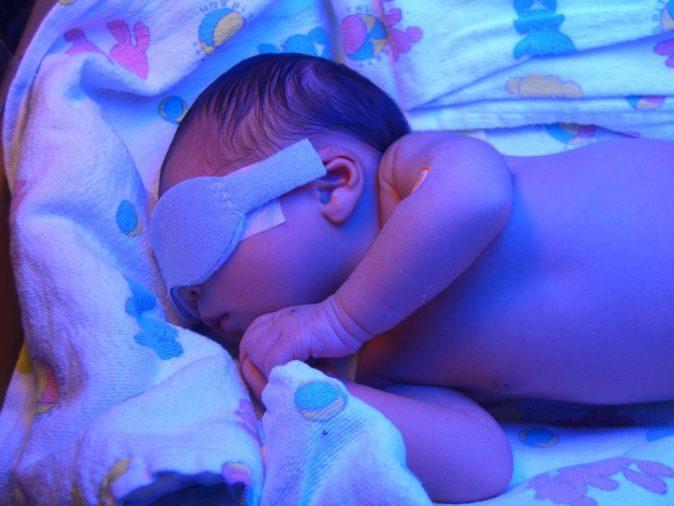 Bebeklerde Fototerapi Uygulanması