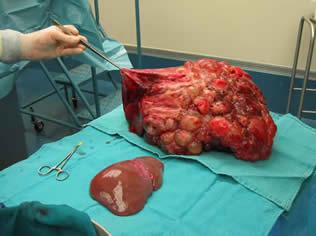 Dekompanse karaciğer Sirozu