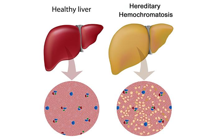Hemokromatozis