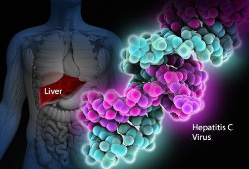 hepatit c ölüme neden olur mu
