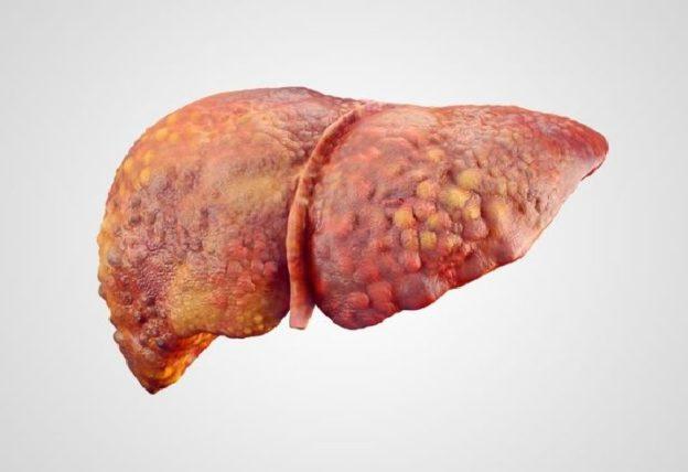 Karaciğer Büyümesi ve Tedavisi