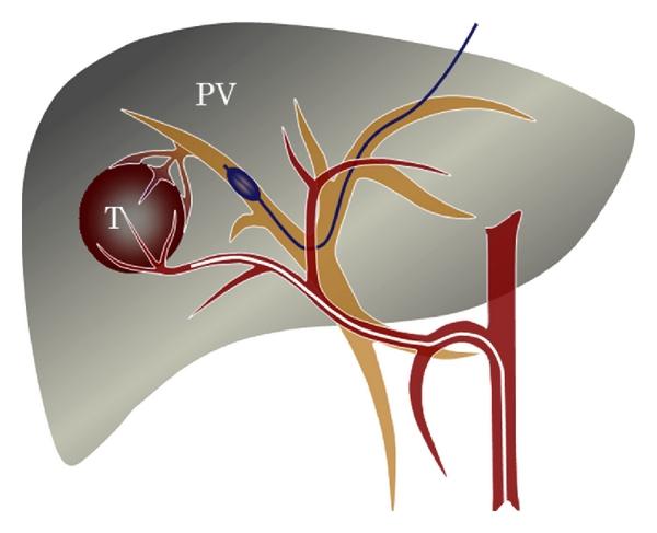 karaciğer damar tıkanıklığı belirtileri