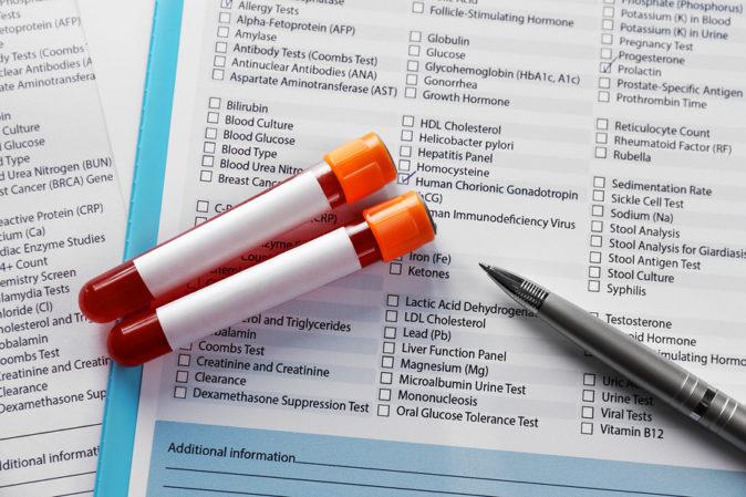 Karaciğer Enzim Testi Aç Karnına Mı Yapılır? - Nasıl Yapılmalı?