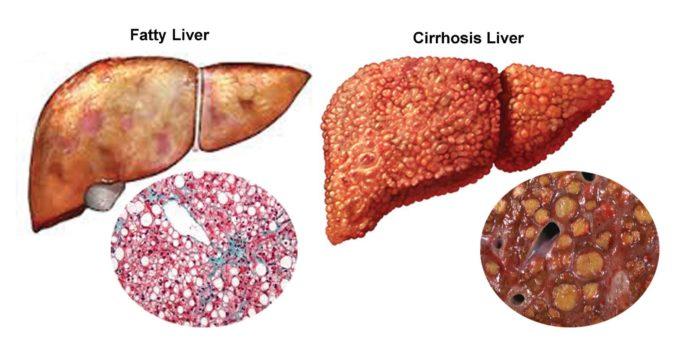 karaciğere iyi gelen besinler