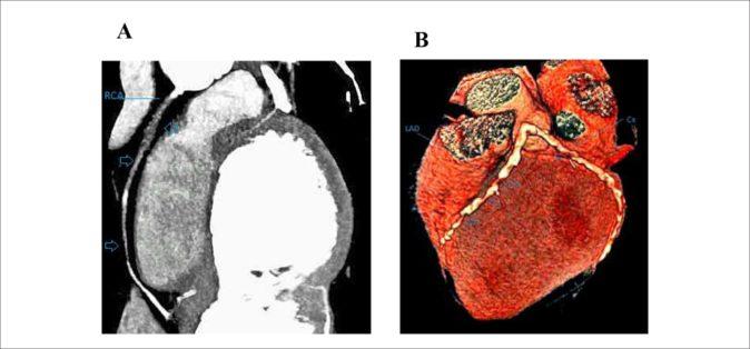 Karaciğer Kraniokaudal
