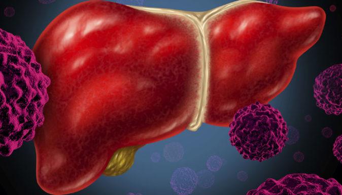 karaciğer nakli sonrası komplikasyonlar