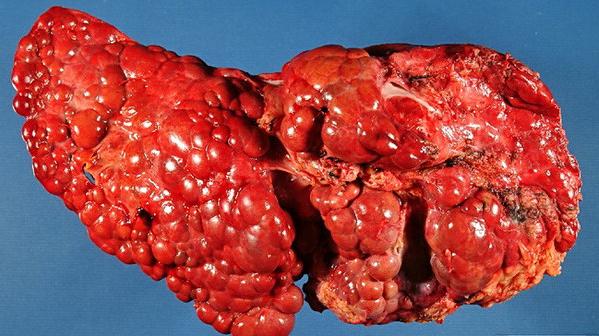 Karaciğer Sirozu