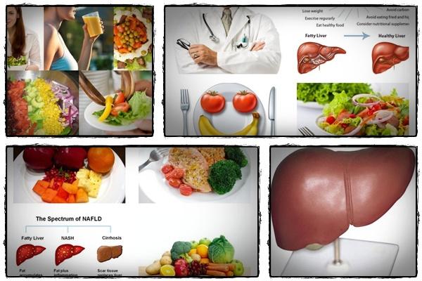 karaciğer yağlanması nedenleri