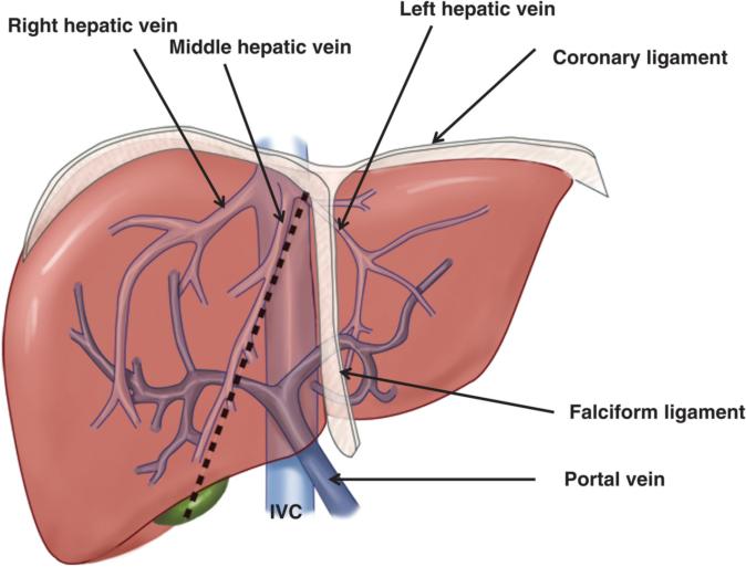 karaciğer damar yumağı