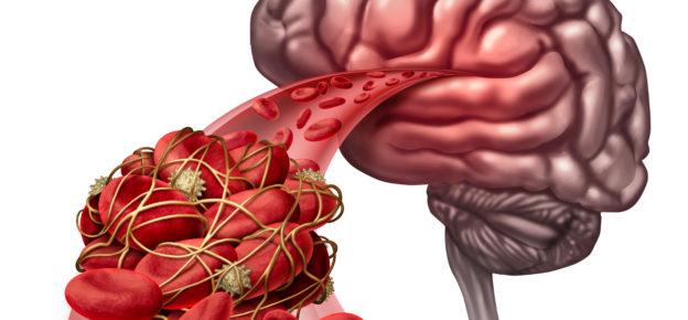 karaciğerde kan pıhtılaşması