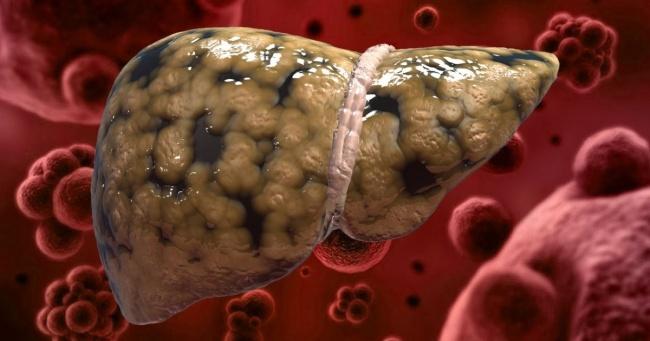 karaciğerden parça alımı