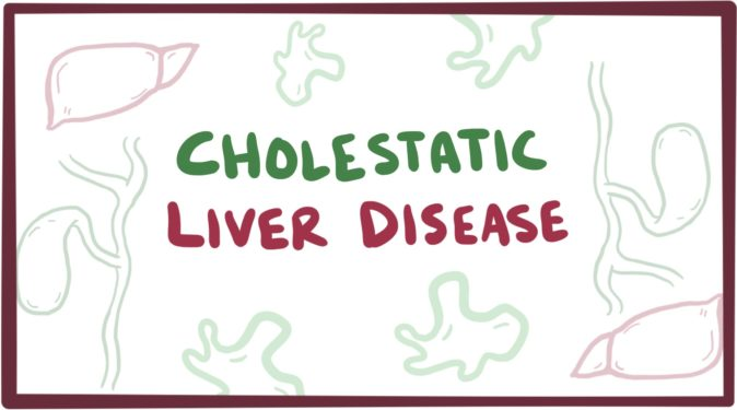 kolestatik karaciğer hastalığı