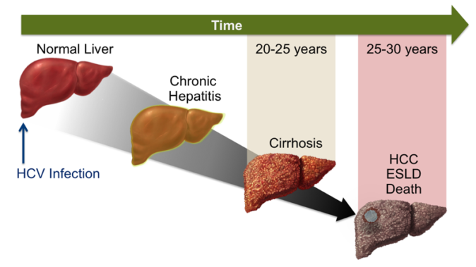 kronik hepatit b nedir