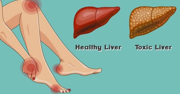 toksik hepatit tanımı